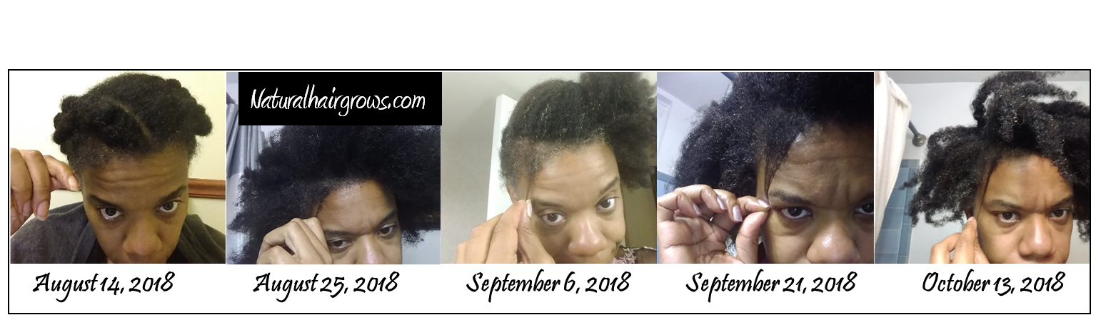August to October 2018 Hair Growth with Black Seed Oil